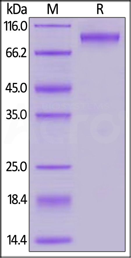 Human Neuroligin-4, Y-linked, His Tag (Cat. No. NL1-H5228) SDS-PAGE gel