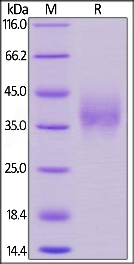 Biotinylated Human NTB-A, His Tag, Avi Tag (Cat. No. NTA-H82E6) SDS-PAGE gel