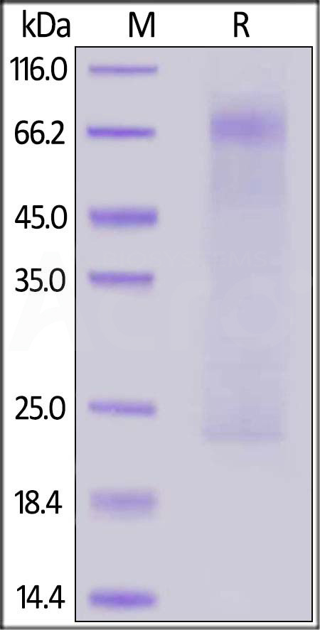 MERS Nucleocapsid protein, His Tag (Cat. No. NUN-M52H5) SDS-PAGE gel