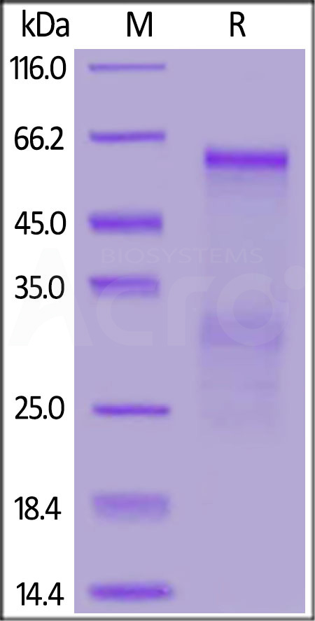 SARS Nucleocapsid protein, His Tag (Cat. No. NUN-S5229) SDS-PAGE gel