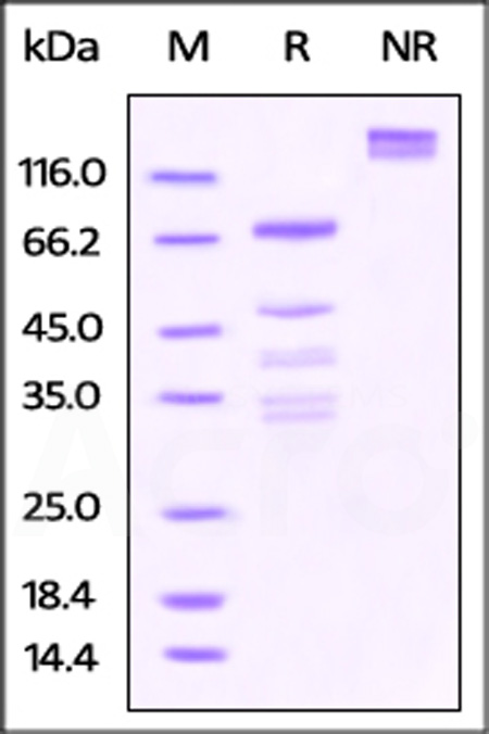 Rabbit OX40, Fc Tag (Cat. No. OX0-R5254) SDS-PAGE gel