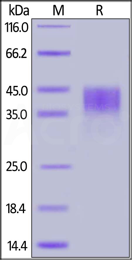 Human CD200, His Tag (Cat. No. OX2-H5228) SDS-PAGE gel