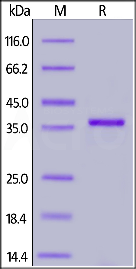SARS-CoV-2 Papain-like Protease, His Tag (Cat. No. PAE-C5148) SDS-PAGE gel