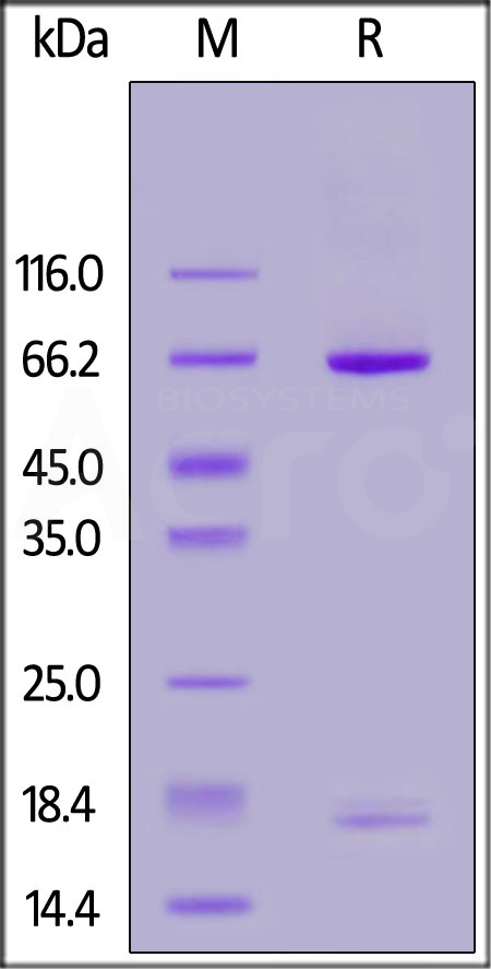 Human PCSK9, His Tag (Cat. No. PC9-H5223) SDS-PAGE gel