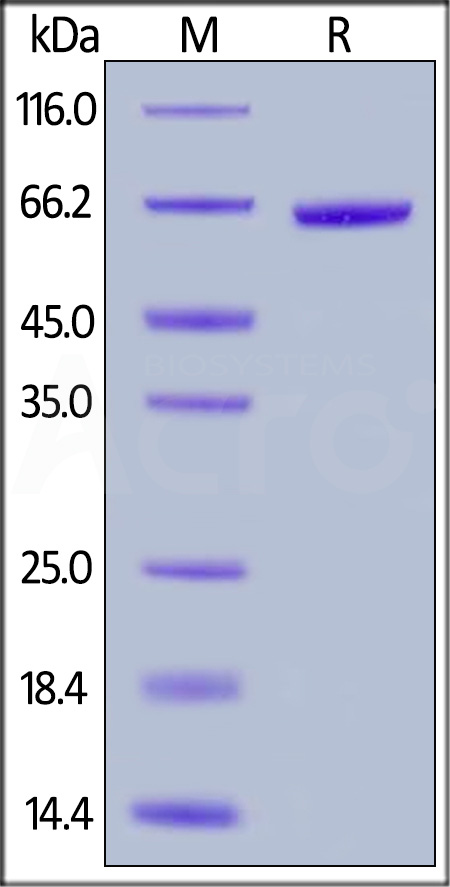 Human Mature PCSK9 (153-692), His Tag (Cat. No. PC9-H5226) SDS-PAGE gel
