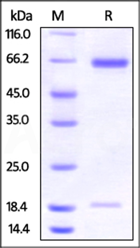 Hamster PCSK9, His Tag (Cat. No. PC9-H52E4) SDS-PAGE gel