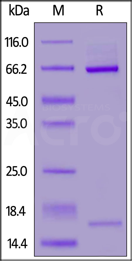 Biotinylated Mouse PCSK9 (Cat. No. PC9-M82E1) SDS-PAGE gel