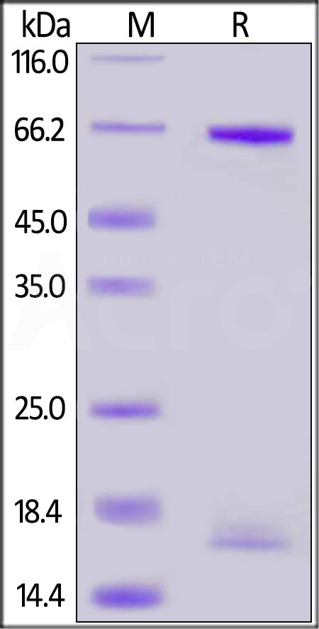 Human PCSK9 Propeptide & Rabbit Mature PCSK9 (154-686), His Tag (Cat. No. PC9-R52H5) SDS-PAGE gel