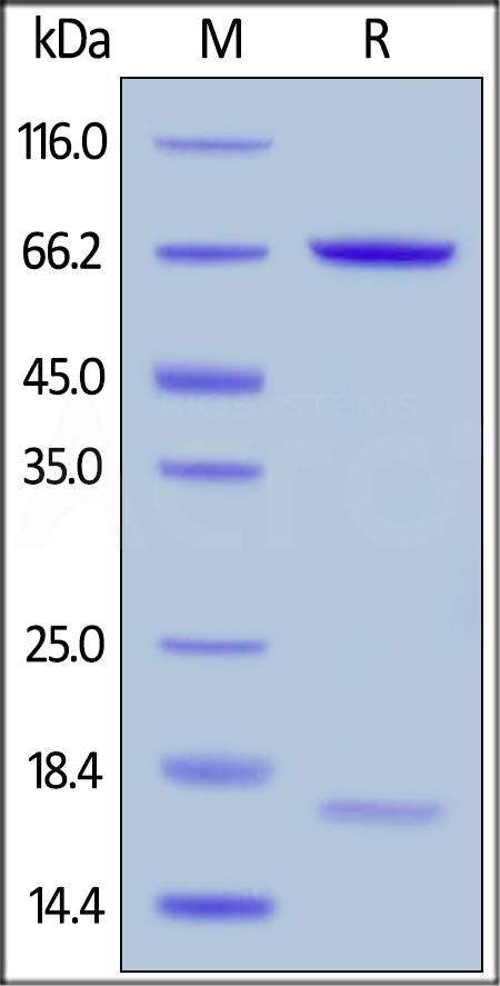 Human PCSK9 (R194A), His Tag (Cat. No. PCA-H5226) SDS-PAGE gel
