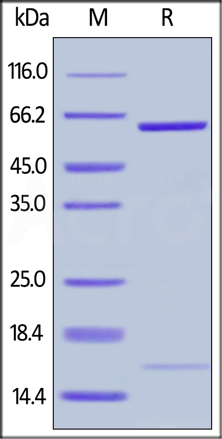 Human PCSK9 (D374Y), His Tag (Cat. No. PCY-H5225) SDS-PAGE gel