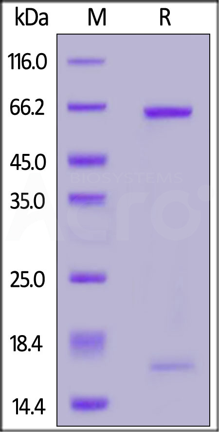 Biotinylated Human PCSK9, His Tag (Cat. No. PCY-H82E7) SDS-PAGE gel