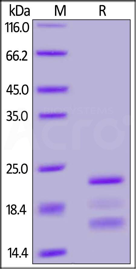 Human PPIB, His Tag (Cat. No. PPB-H5229) SDS-PAGE gel