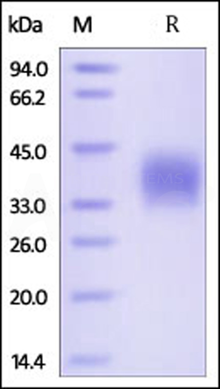 Human PROCR, His Tag (Cat. No. PRR-H5223) SDS-PAGE gel