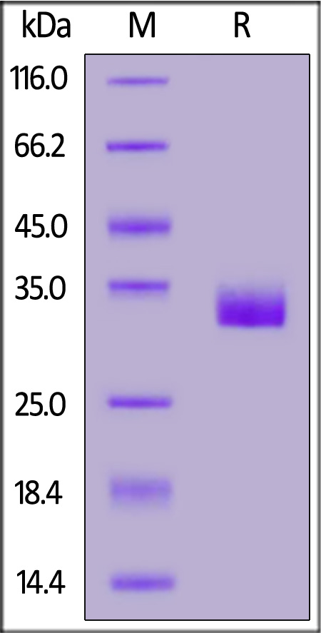 Human Prolactin R / PRLR Protein, His Tag  (Cat. No. PRR-H52Ha) SDS-PAGE gel