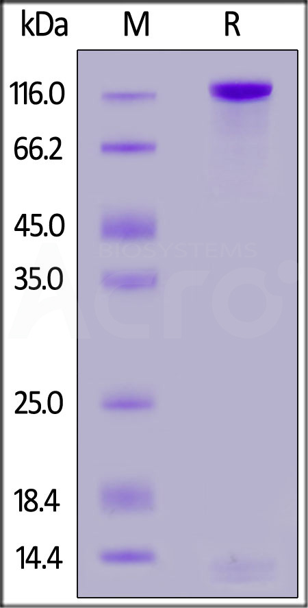 Human PTPRD, His Tag (Cat. No. PTD-H52H9) SDS-PAGE gel