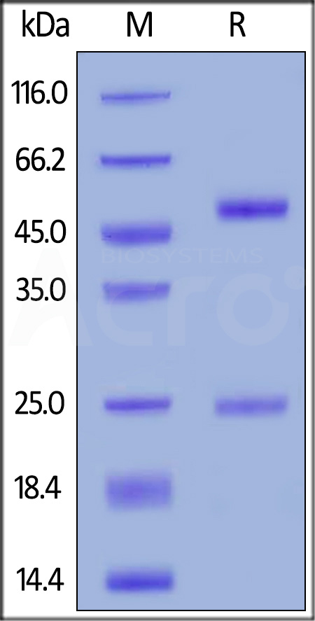 Anti-Rituximab Antibodies (Cat. No. RIB-Y35) SDS-PAGE gel