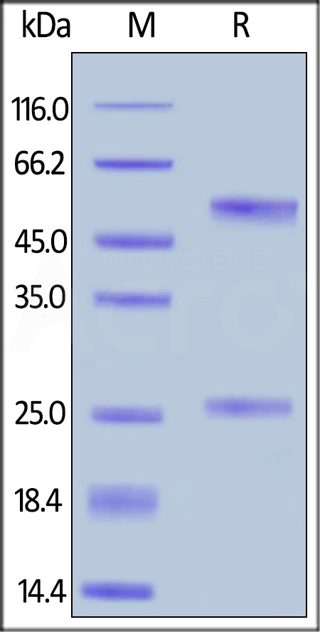 Anti-Rituximab Antibodies (recommended for ADA assay) (Cat. No. RIB-Y36) SDS-PAGE gel