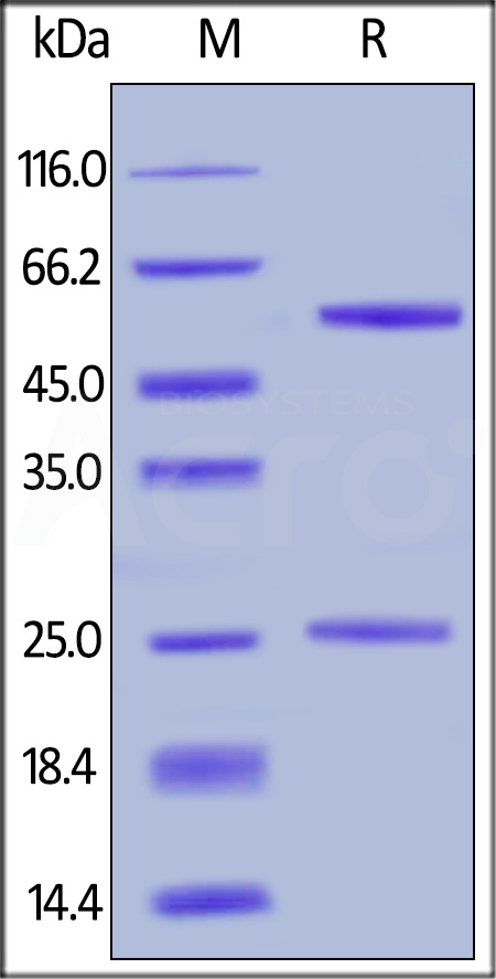 Anti-Rituximab Antibodies (recommended for PK/PD) (Cat. No. RIB-Y37) SDS-PAGE gel