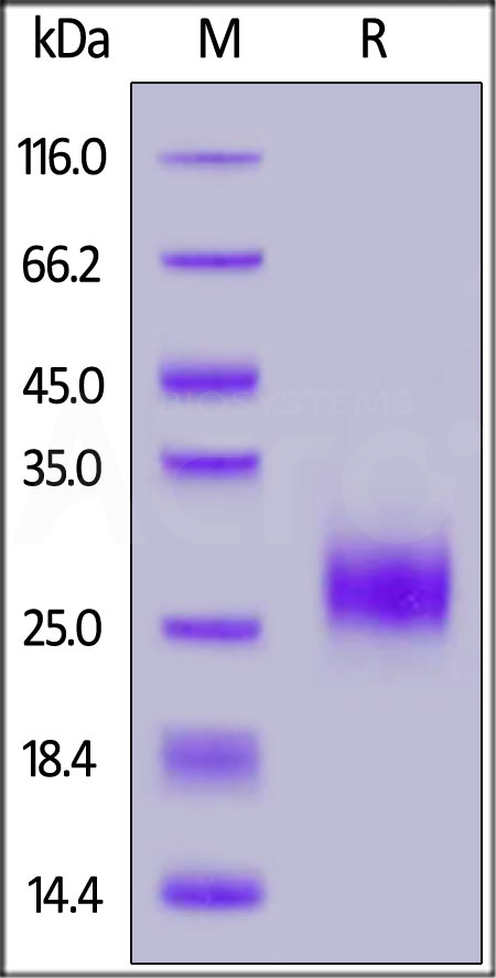 Human ROR1 (39-151, Ig-like domain), His Tag (Cat. No. RO1-H5221) SDS-PAGE gel