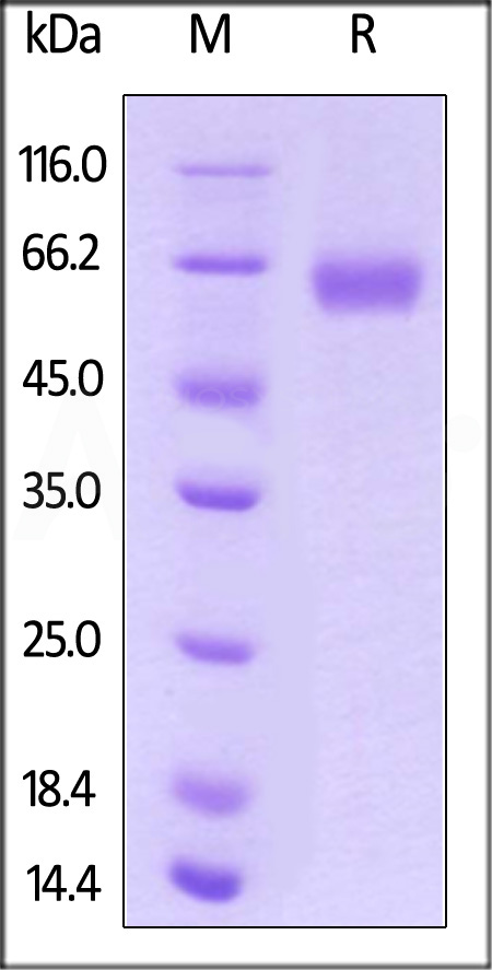 Human ROR1, His Tag (Cat. No. RO1-H522y) SDS-PAGE gel
