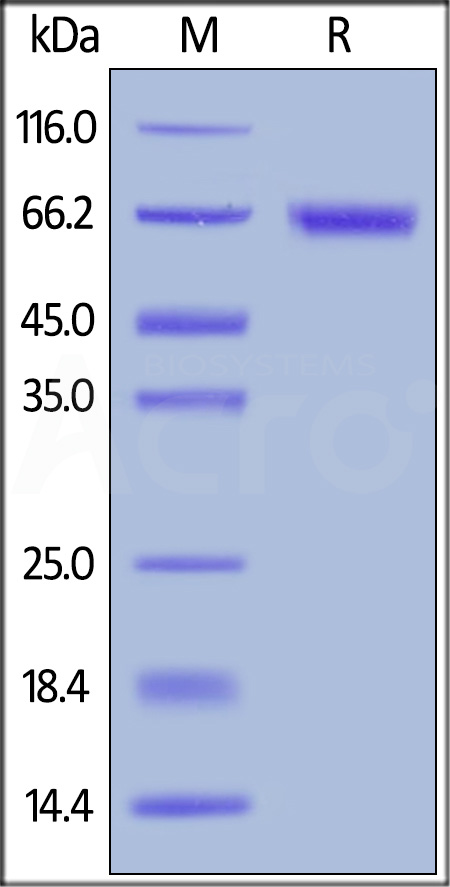 Biotinylated Human ROR1, His,Avitag (Cat. No. RO1-H82E6) SDS-PAGE gel