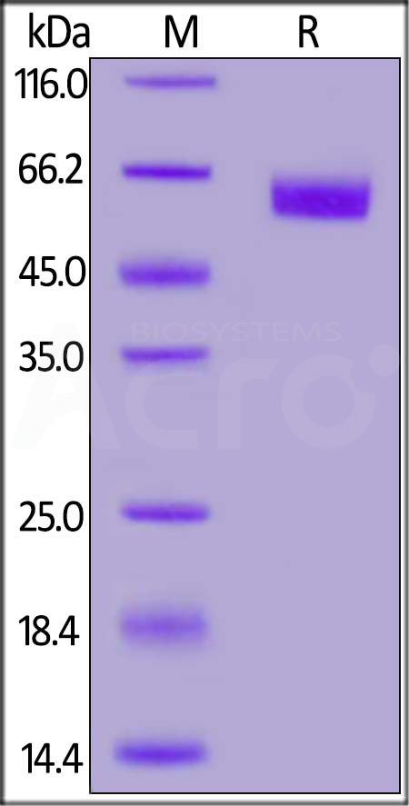 FITC-Labeled Human ROR1, His Tag (Cat. No. RO1-HF258) SDS-PAGE gel
