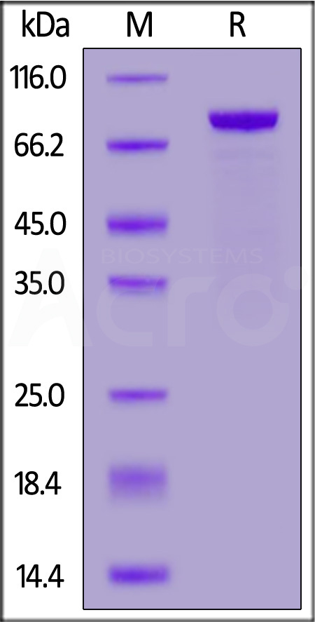 Human ROR2, Fc Tag (Cat. No. RO2-H5251) SDS-PAGE gel