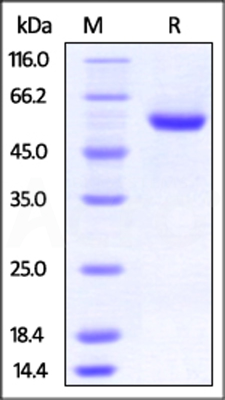 Human ROR2, His Tag (Cat. No. RO2-H52E5) SDS-PAGE gel