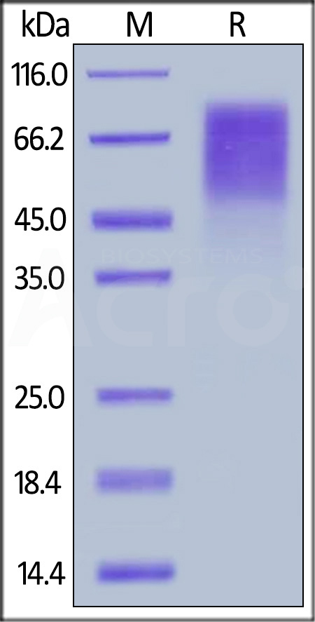 HRSV (A) Glycoprotein G, His Tag (Cat. No. RSG-V5221) SDS-PAGE gel