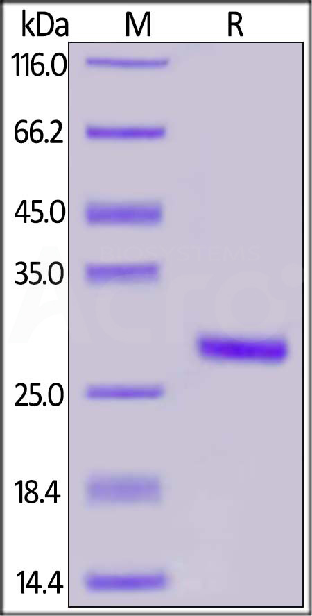 SARS-CoV-2 S1 protein CTD, His Tag (MALS-verified) (Cat. No. S1D-C52H3) SDS-PAGE gel