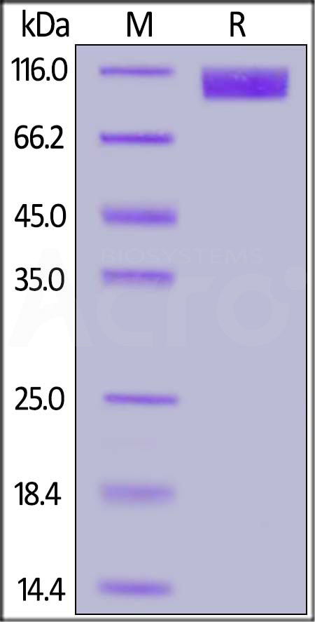SARS S1 protein, His Tag (Cat. No. S1N-S52H5) SDS-PAGE gel