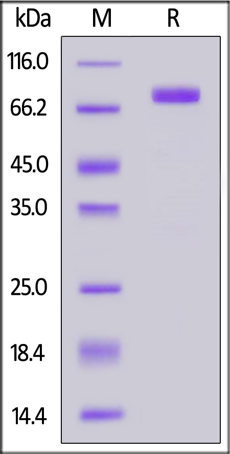 Human SIRP beta, Fc Tag (Cat. No. SIA-H5257) SDS-PAGE gel