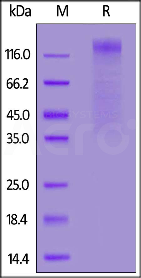 HCoV-NL63 S1 protein, His Tag (Cat. No. SIN-V52H3) SDS-PAGE gel