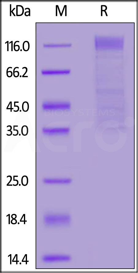 HCoV-HKU1(isolate N5) S1 protein, His Tag (Cat. No. SIN-V52H6) SDS-PAGE gel