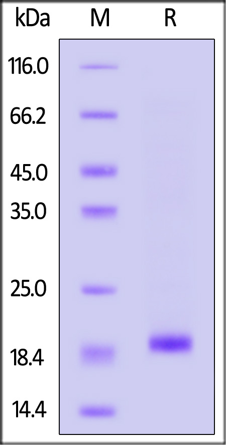 Human SOD1, His Tag (Cat. No. SO1-H5148) SDS-PAGE gel