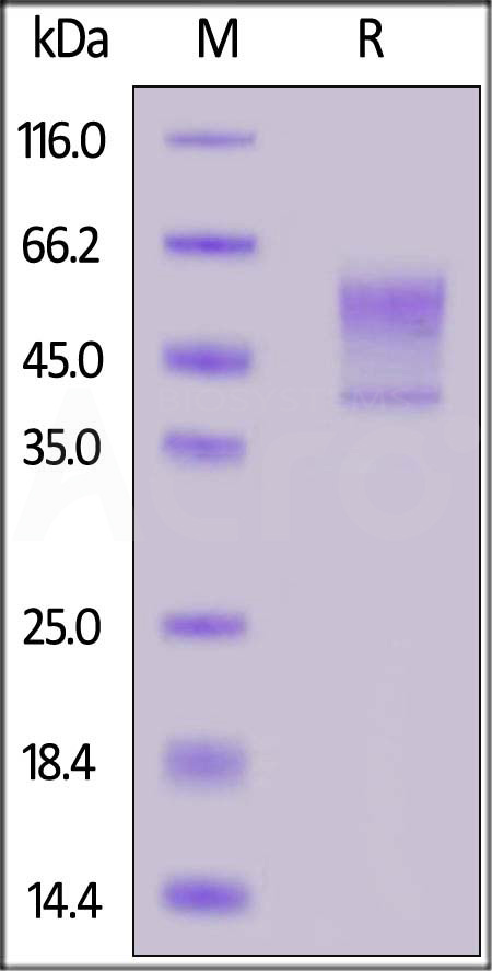 Human Syndecan-1, His Tag (Cat. No. SY1-H5225) SDS-PAGE gel
