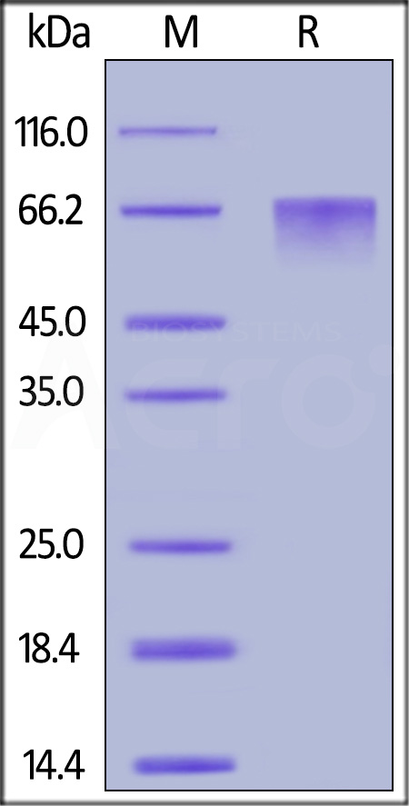 Human THSD1, His Tag (Cat. No. TH1-H52H5) SDS-PAGE gel