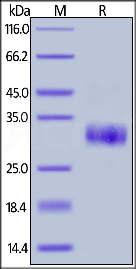 Human TIMP1, His Tag (Cat. No. TI1-H5226) SDS-PAGE gel