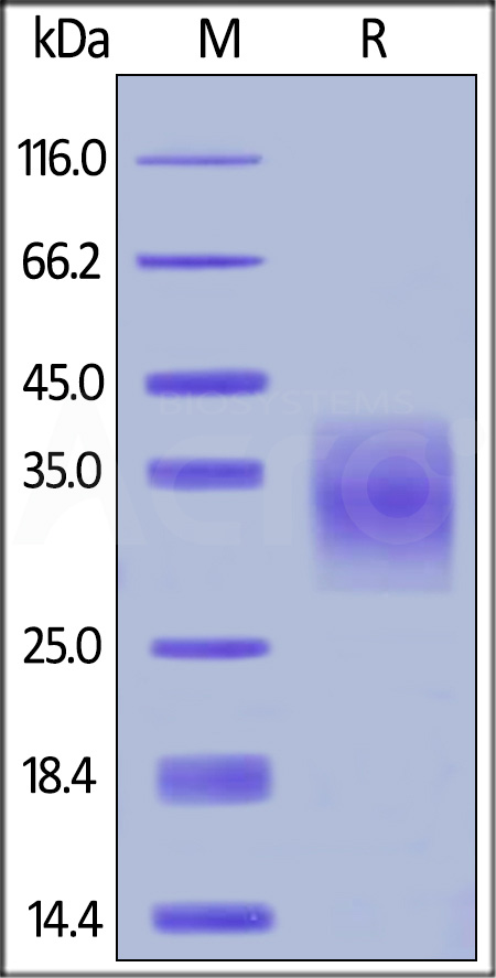 Human TNFR1, His Tag (Cat. No. TN1-H5222) SDS-PAGE gel