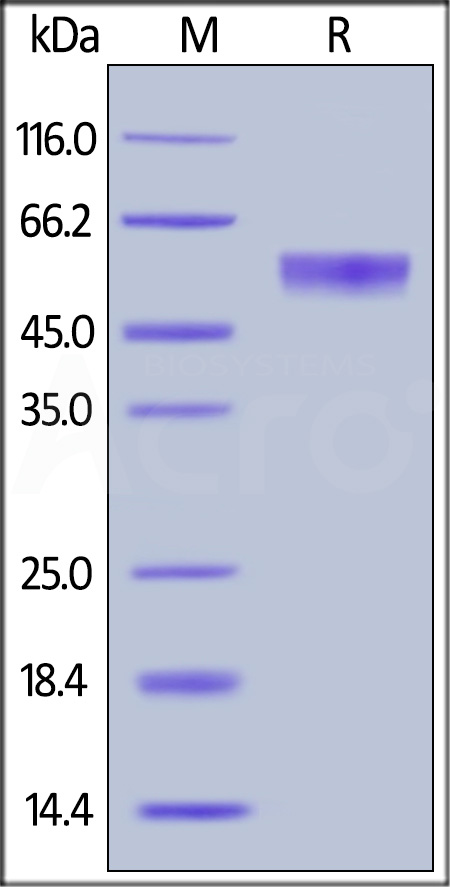 Human Osteoprotegerin, His Tag (Cat. No. TNB-H5220) SDS-PAGE gel