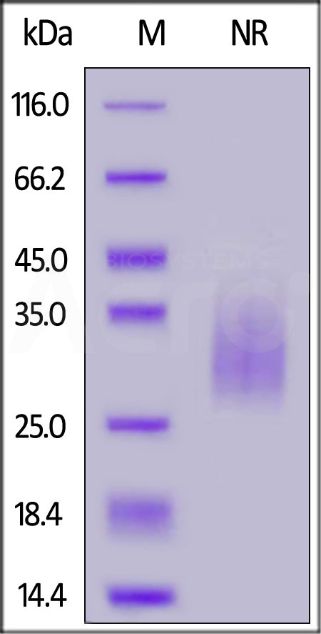 Human TREM2, His, Tag (Cat. No. TR2-H52H5) SDS-PAGE gel