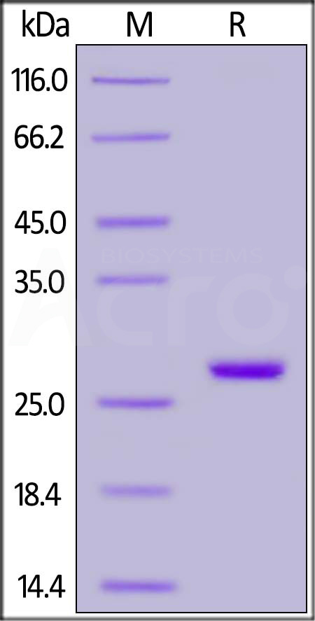 Human UCH-L1, His Tag (Cat. No. UC1-H5140) SDS-PAGE gel