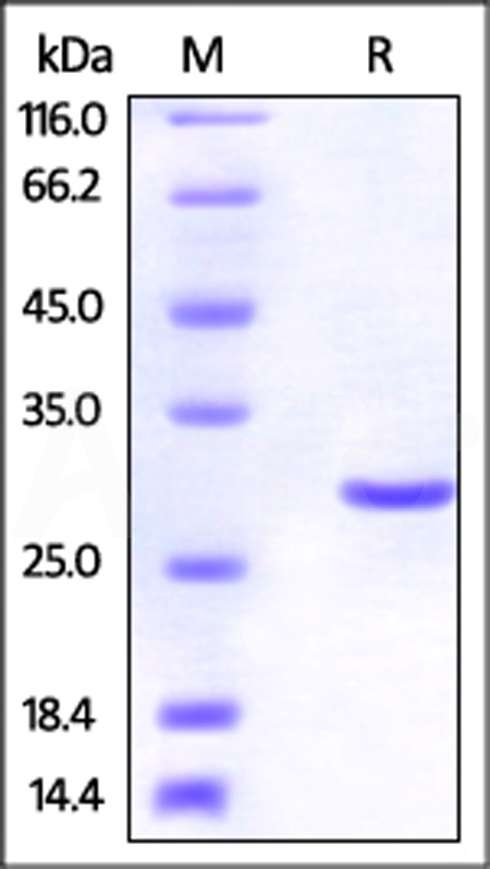 Human UCH-L3, His Tag (Cat. No. UC3-H5141) SDS-PAGE gel