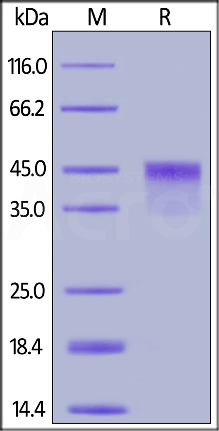 Human VSIG4, His Tag (Cat. No. VS4-H5226) SDS-PAGE gel