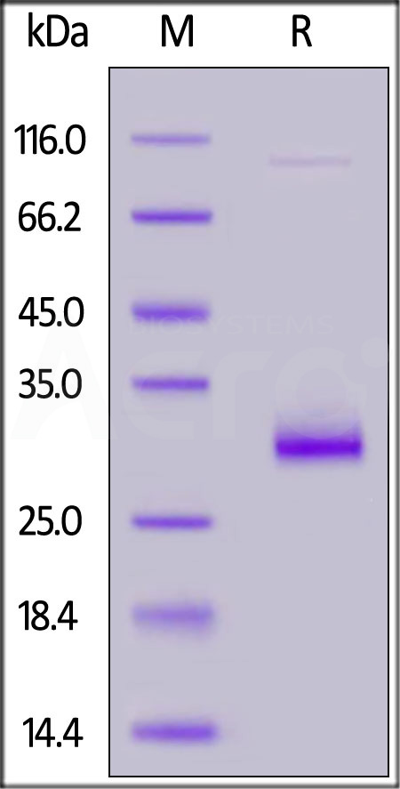 Human VSIG8, His tag (Cat. No. VS8-H52H1) SDS-PAGE gel