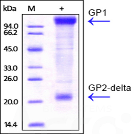 Ebolavirus EBOV (subtype Zaire, strain Kikwit-95) GP, His Tag (Cat. No. ZE5-V5221) SDS-PAGE gel